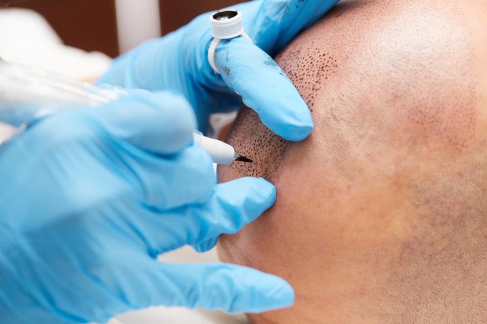 Medizinische Pigmentierungpermanent make up tricopigmentation